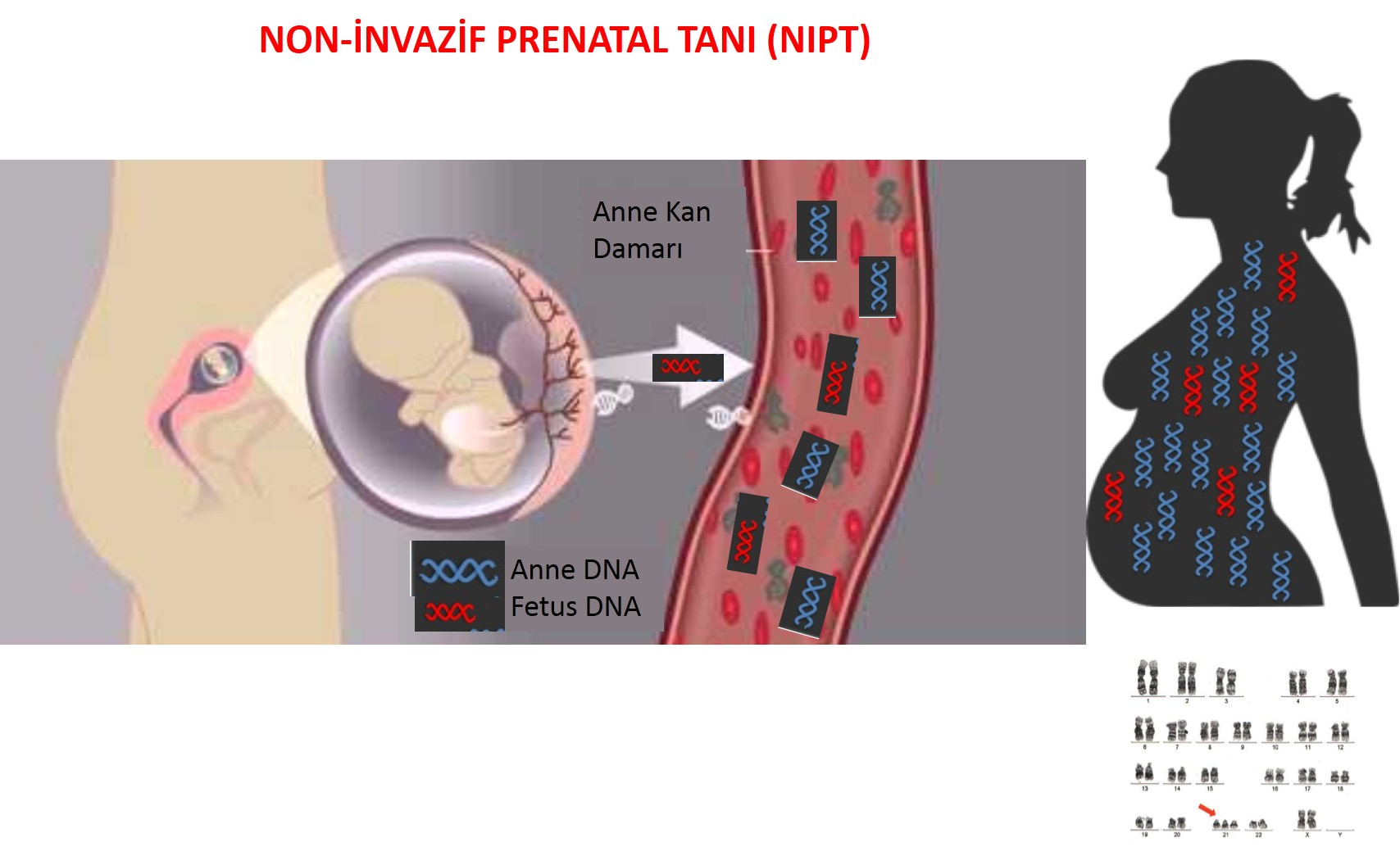NON INVASIVE PRENATAL TEST (NIPT)